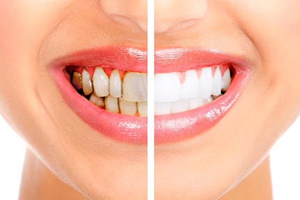 Estética dental - Centro Medico Valle Real